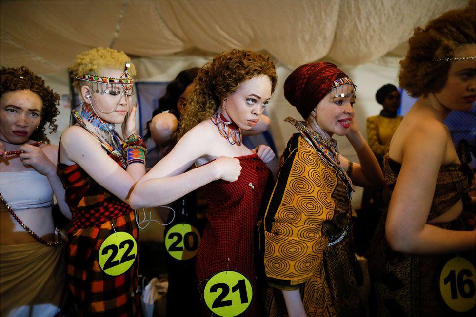 Un concours de beauté des albinos du Kenya